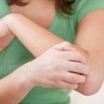 kulit gatal dan kering