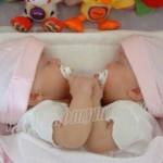 Penyebab Kembar Siam
