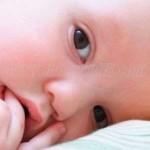 Mengobatai Sariawan Pada Bayi